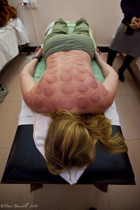 hot cupping china back