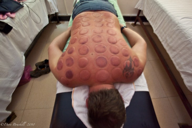 Hot Cupping Therapy Or Just Pain