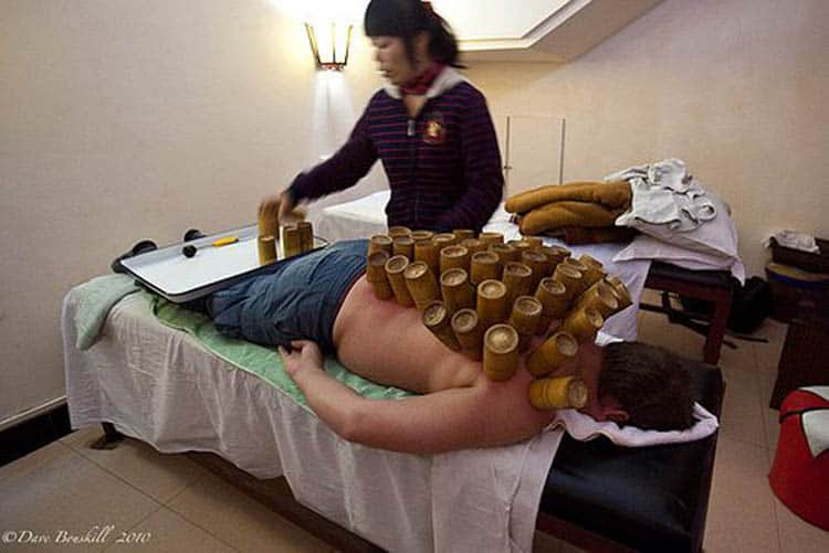 china hot cupping therapy